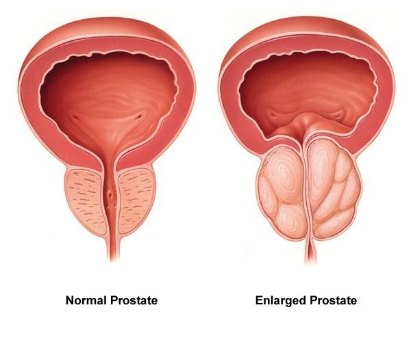 prostates