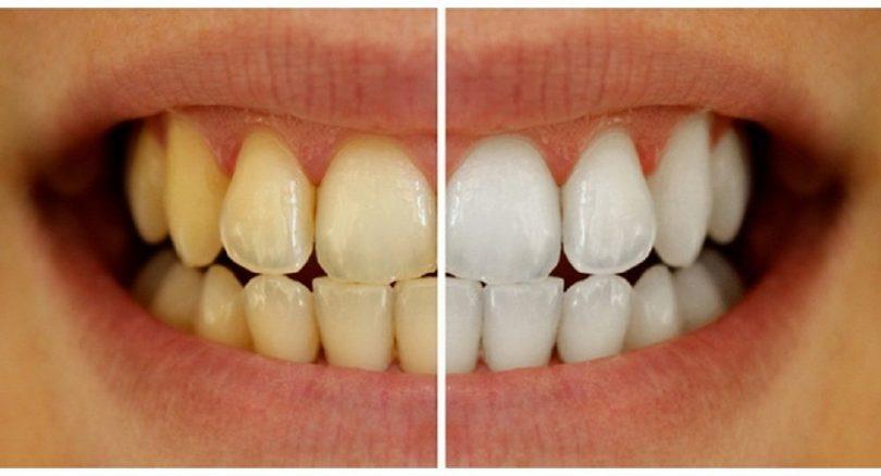 dhëmbët