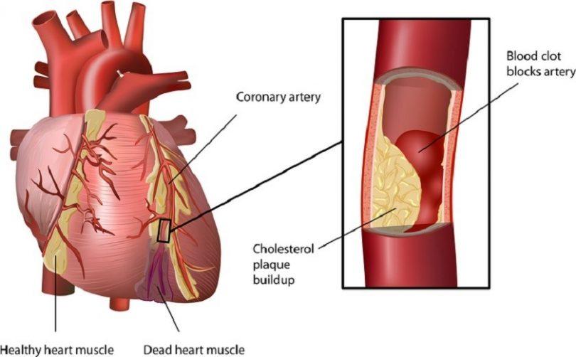 problemet e zemres